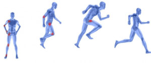 Physiotherapy - body in action
